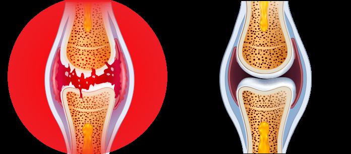 5 presudno činjenice vezi reumatidnog artritisa